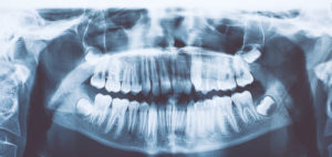 X-ray of a patient for a dental exam Melrose MA | dental office | Comprehensive dental exam Melrose MA