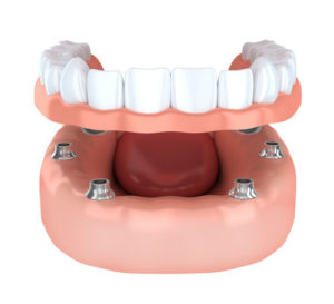 dentures Melrose MA