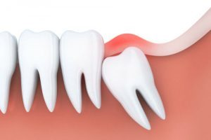 Tooth Extraction in Melrose MA | Wisdom Teeth Extraction