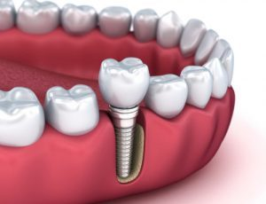 dental implants Melrose MA