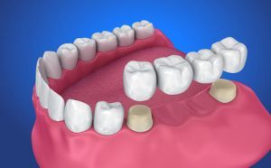 Dental Bridges in Melrose MA | Restorative Dentistry