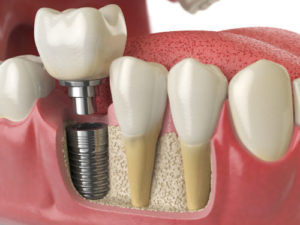 dental implant Melrose MA | Melrose Dentist |