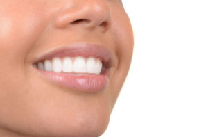 teeth whitening Melrose MA