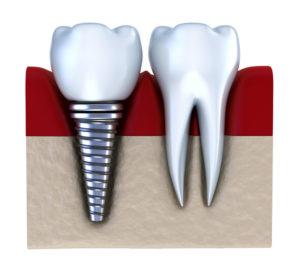 dental implants melrose ma