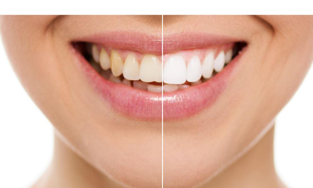 Melrose Dentists | Teeth whitening results.